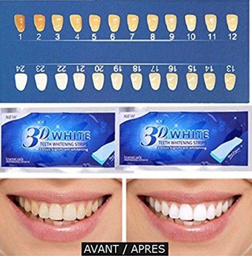 Blanqueamiento de dientes 3D Blanco